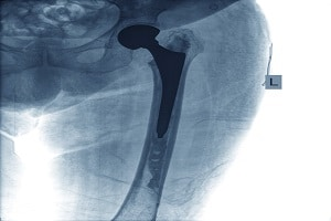 x-ray of hip showing metal hip implant
