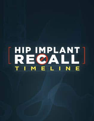 Hip Implant Recall graphic