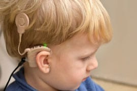 cochlear-implant-on-child