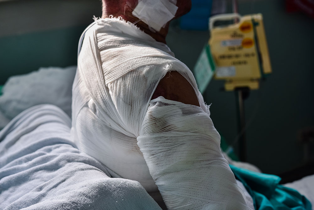 Patient with burns wound in burn unit at the hospital