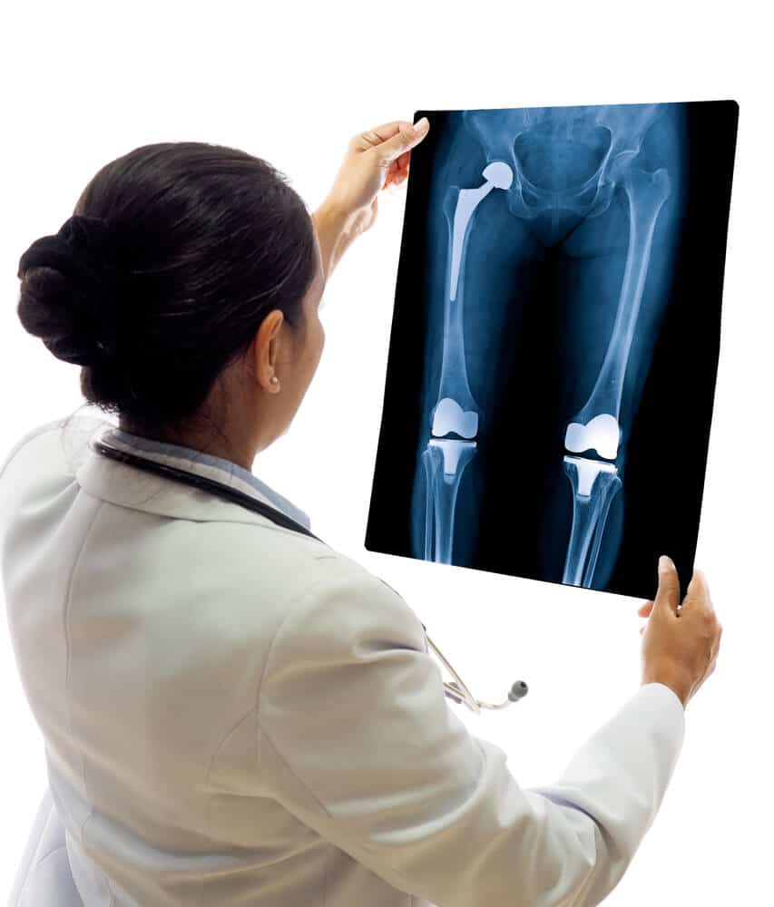 hip-replacement-4